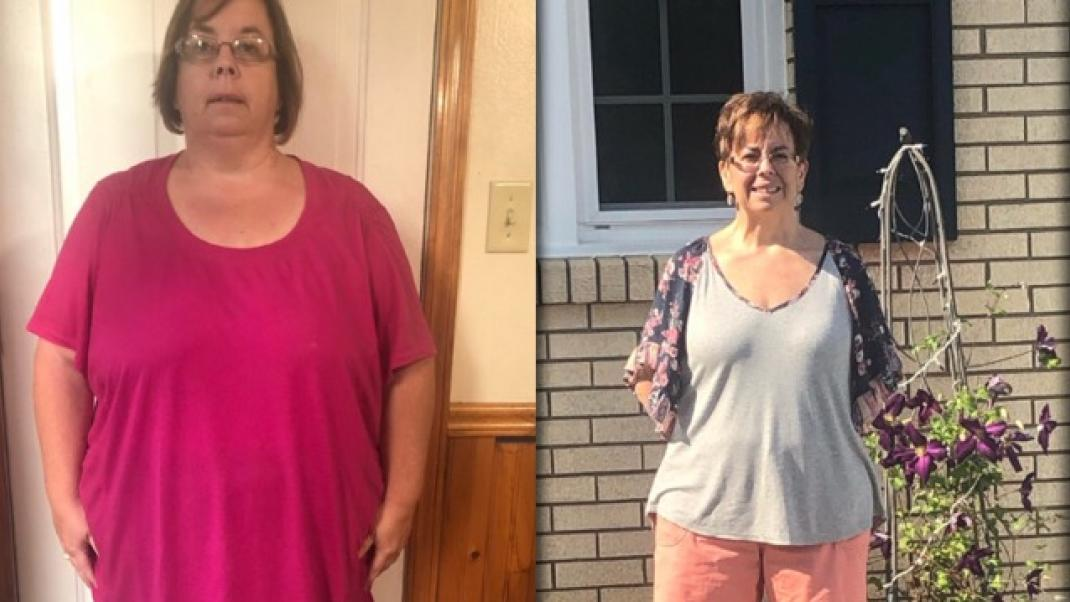 Patient Testimonial - Weight Management